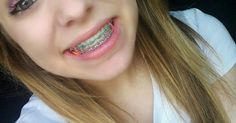 Those who are all having the crooked teeth or miss-alignment of teeth are often looking for the green braces to wear. Due to this dental problem, they have reduced appearance and feel embarrassing … Cute Braces Colors, Cute Girls With Braces, Kids Braces, Dental Braces, Braces Rubber Bands, Braces Bands, Braces Tips, Braces Smile, Teeth Braces