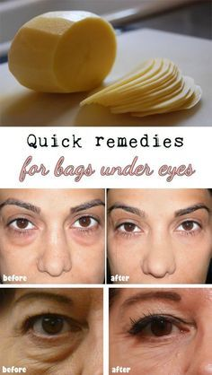 Quick remedies for bags under eyes:- Potato slices Potato slices juice helps to diminish dark circles and eye bags. You can apply two potato slices directly under the eyes or two cotton pads soaked in potato juice. Beauty Care, Diy Beauty, Beauty Skin, Beauty Hacks, Juice Beauty, Under Eye Bags, Removing Bags Under Eyes, How To Get Rid Of Bags Under Eyes, Puffy Bags Under Eyes