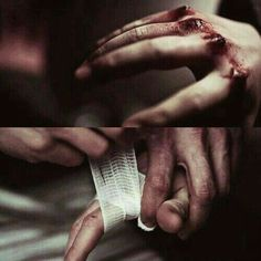 """Putting her bloodied hands underneath the running water made Holly's hands sting even more causing her to cry. Brad came in the bathroom carrying a first aid kit then placed it on the counter and took out some gauze, """"May I?"""" he asked pointing to her hands. Holly nodded handing out her right hand as Brad dried it then gently wrapped it with the gauze."""