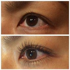 before/after beautyartaesthetics.com