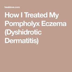 How I Treated My Pompholyx Eczema (Dyshidrotic Dermatitis)