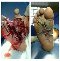 Awesome foot surgical repair, I don't know what the mechanism of injury was.