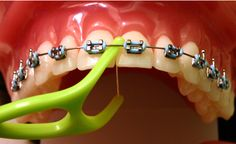 Specialty Floss for a healthy teeth and gums