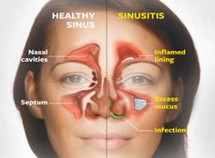 Sinus Infection medications mask the root cause. Get relief and learn how to stop them forever naturally without side effects of steroids or allergy pills