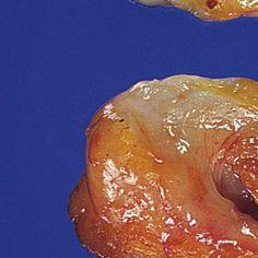 intraductal papilloma gross)