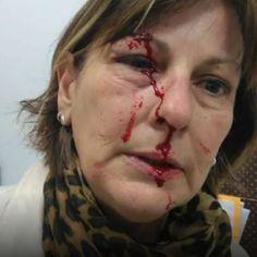 Juíza dá semiliberdade a menor que agrediu professora