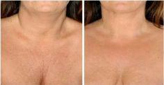 Az öregedés legszembetűnőbb jeleni az arcon, a nyakon és a dekoltázson mutatkoznak meg. Szerencsére van rá néhány olcsó, de igen hatékony természetes szer.