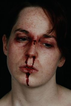 broken nose healing - Google Search | From Hell and Back Again ...