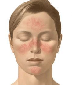 Rosacea At A Glance
