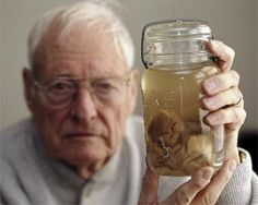 The pathologist who made Einstein body's autopsy stole his brain and kept it in a jar for 20 years.