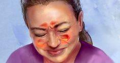 Voici comment soulager votre infection des sinus en 20 secondes grâce à cette astuce.