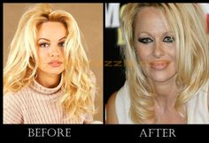 celebrity before and after plastic surgery | Before & After Pictures Of Top 10 Plastic Surgery Fails Of Celebrities