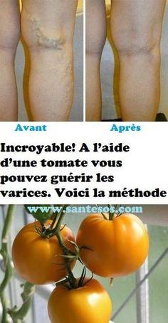 Incroyable! A l'aide d'une tomate vous pouvez guérir les varices. Voici la méthode Varicose Veins, Healthy Nutrition, Cellulite, Aloe Vera, Food Videos, Natural Health, Physique, Body Care, Natural Remedies