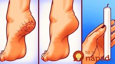 GENIUS BODY HACKS You can't underestimate the importance of taking care of your feet. There's even a special discipline in medicine called Reflexology. Paraffin Wax Treatment, Diy Beauty, Beauty Hacks, Massage Shiatsu, Bloating And Constipation, Cosmetic Treatments, Body Hacks, Listerine, Girl Tips