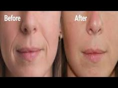 Rapidly Remove Deep Mouth Wrinkles Fast Look Younger and With This Wrinkle Remedy
