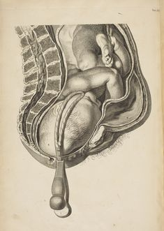 """A Sett of Anatomical Tables, the Practice of Midwifery, by William Smellie, 1754. """" Smellis is one of the most important obstetricians of all times. Through his A Treatise on the Theory and Practice of Midwifery ( 1752), his teaching was spread throughout the world. In 1754 he also published an atlas with 39 copperplates, which are superior to any previously published. The figures in natural size were drawn by Jan van Rymsdyk."""""""