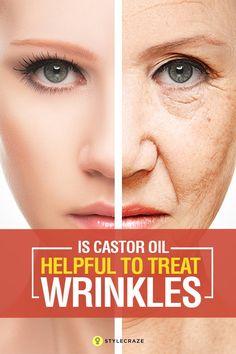 Is Castor Oil Helpful To Treat Wrinkles?
