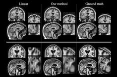People who suffer a stroke often undergo a brain scan at the hospital, allowing doctors to determine the location and extent of the damage. Researchers who study the effects of strokes would love to be able to analyze these images, but the resolution is often too low for many analyses. To help...