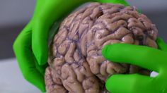 Fergus Walsh introduces the marvel that is the human brain.