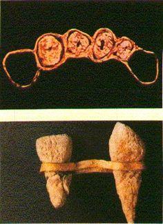 Etruscan prosthesis