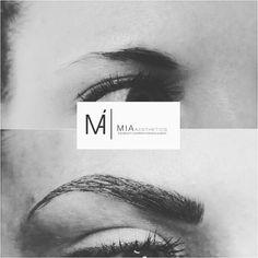 #MIAAesthetics #Eyebrows #MIABlackDiamondBlading #Micropigmentation #Microblading #beauty
