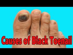 Why You Should NEVER Ignore a Black Toenail and How to Cure it ...