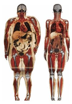 Body scan of 250 lb woman and 120 lb woman. Not that a women needs to weigh 120 lbs.but the damage obesity causes. Look at the size of the intestines and stomach; how the knee joints rub together; the enlarged heart; and the fat pockets near the brain. Fitness Motivation, Fitness Gear, Weight Loss Motivation, Woman Motivation, Workout Fitness, Exercise Motivation, 120 Pounds, 120 Lbs, Enlarged Heart