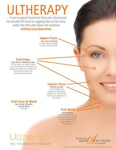 Ultherapy treats the face and neck with no downtime.