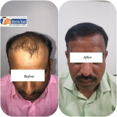 Worried About Baldness…? Get Effective Hair Transplant Treatment at La Densitae Hair Transplant Clinic in Pune. Easy EMI Available For 24 Months. Call Now: 8888643333 Hair Transplant Results, Hair Transplant Cost, Hair Clinic, Call Backs, Pune, Fall Hair, Cool Hairstyles, 6 Months, Image