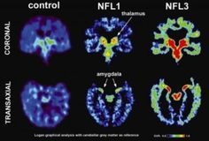 Concussion-related abnormal brain proteins in retired NFL players