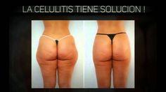 *Celulitis* Remedios Caseros Para La Celulitis - Eliminar La Celulitis