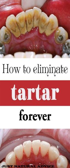 BE YOUR OWN DENTIST! HERE ARE TRICKS TO REMOVE TARTAR BUILDUP AT HOME[;'