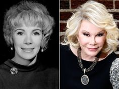 Pop Culture: Entertainment and Celebrity News, Photos & Videos - Pop Culture: Entertainment and Celebrity News, Photos & Videos YIKES A Timeline of Joan Rivers' Ever-Changing Plastic Surgery Face /… - PintoPin Bad Plastic Surgeries, Plastic Surgery Gone Wrong, Plastic Surgery Photos, Celebrity Plastic Surgery, Celebrities Before And After, Celebrities Then And Now, Joan Rivers, Under The Knife, Photoshop