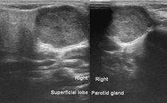 Αποτέλεσμα εικόνας για Differentiation between superficial and deep lobe parotid