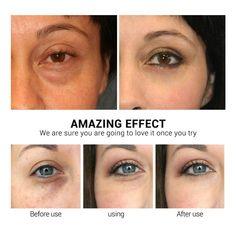 Vitamin C Eye Mask 50 pcs – Lanbenabeautyshop Skin Allergy Test, Dark Circles Under Eyes, Eye Circles, Wedding Hair Side, Centella, Puffy Eyes, Skin Problems, Cool Eyes, Beauty
