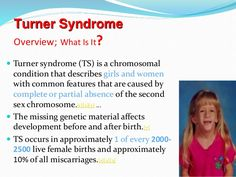 16 Best Turner Syndrome Images
