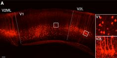 Researchers identify previously unknown subtype of neuron in the visual cortex.