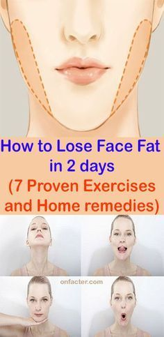 How to Lose Face Fat in 2 days 7 Proven Exercises and Home remedies Onfacter Fat Face Exercises, Double Chin Exercises, Facial Exercises, Lose Hip Fat Exercises, Cheek Fat, Reduce Face Fat, Loose Face Fat, Lose Fat In Face, How To Loose Fat