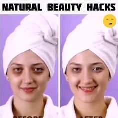 Eye dark circle can be resolved by natural hack. Natural Beauty Tips, Health And Beauty Tips, Skin Tips, Skin Care Tips, Beauty Care, Beauty Skin, Beauty Secrets, Beauty Hacks, Girl Life Hacks