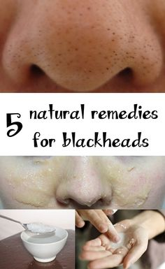 Remedies for blackheads - Top 5 natural remedies