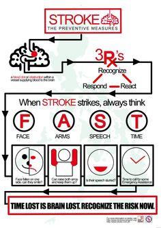 Stroke: recognise, respond, react