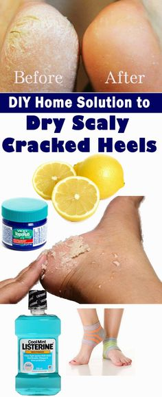 5 Best Working DIY Home Solution to Dry Scaly Cracked Heels