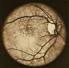 I was a Certified Ophthalmic Photographer when you still had to develop film in a darkroom... Awesome experience!