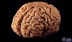 هل المخ هو المسؤول الأول عن تعلم…: توصلت دراسة أجراها علماء بريطانيون إلى أن الأشخاص، الذين يرتكبون نفس الأخطاء مرارا وتكرارا ولا يتعلمون…