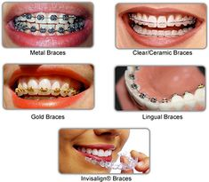 Choosing Right Type Of Braces