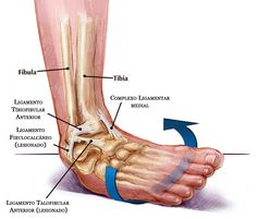 """The most common injury reported with a """"twisted ankle"""" is a sprain to the lateral ligaments of the ankle (the ones on the outside as opposed to the inside [medial]) Description from myphysiocare.wordpress.com. I searched for this on bing.com/images"""