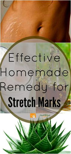 natural-way-to-get-rid-of-stretch-marks