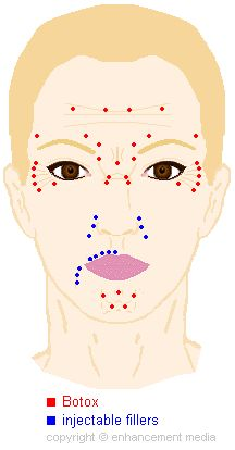 Resultado de imagen de Botox Injection Sites Chart