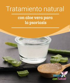 Tratamiento natural con aloe vera para la psoriasis  A día de hoy no existe un tratamiento específico para la psoriasis que nos dé resultado a todos.