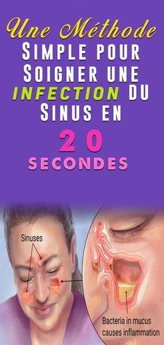 Vos sinus sont des cavités remplies d'air creusées dans les os de la face et du crâne. Une sinusite est une inflammation des tissus mous qui tapissent les sinus. Il existe deux sortes de sinusites : la sinusite aiguë, de courte durée, qui peut être due à un rhume, à une allergie ou à des polluants de l'environnement, et une sinusite chronique qui dure plus de 12 semaines. Gaia, Infection Des Sinus, Body Motivation, Boutique, Health Insurance, Massage, Nutrition, Health Fitness, Medical